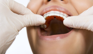 orthodontic doctor examine teeth and gums of jaw